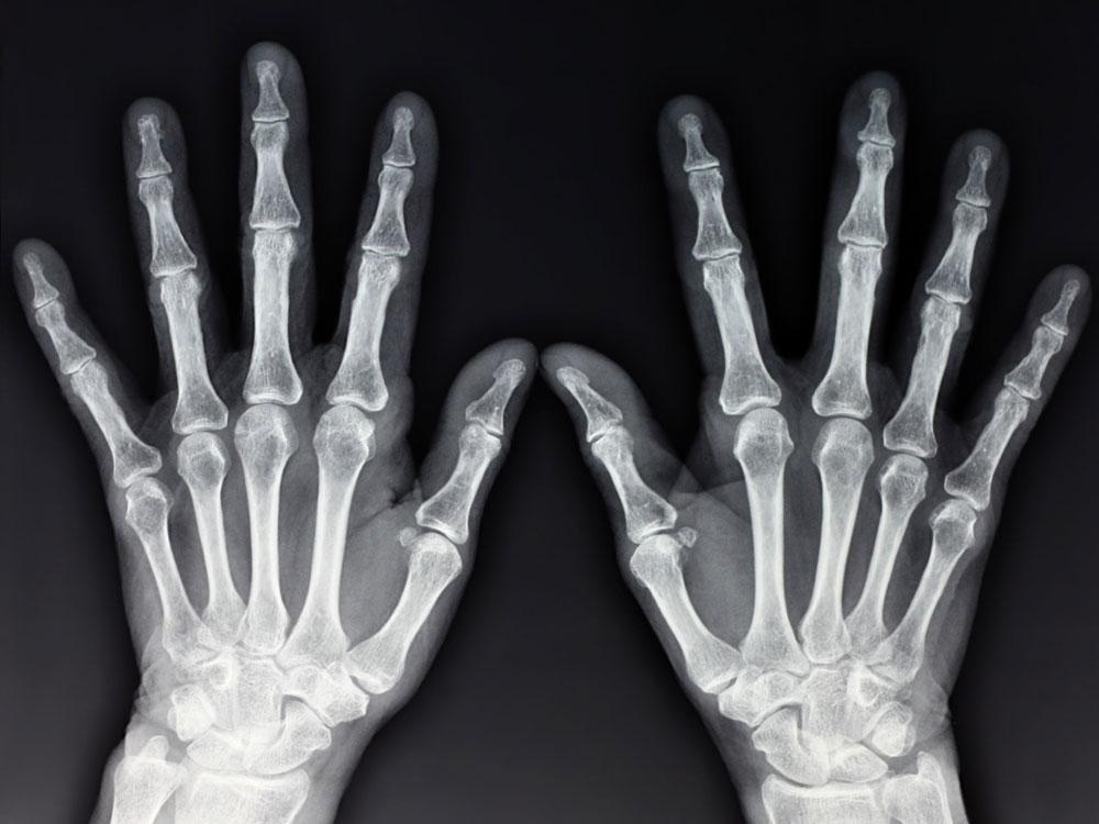 Osteoartrita artroza Tratamentul artrozei osteoartroza. Dacă articulațiile de pe mâini doare